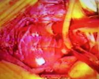 Imagen 1 del trasplante realizado por el doctor Javier Cabo