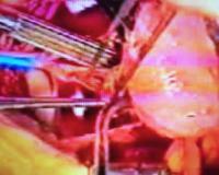 Imagen 2 del trasplante realizado por el doctor Javier Cabo